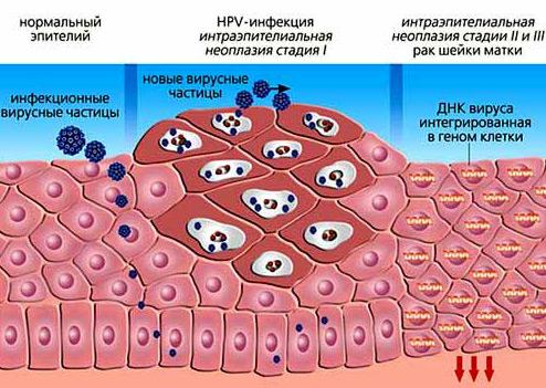 Вирус папилломы человека. Методы избавления от бородавок.